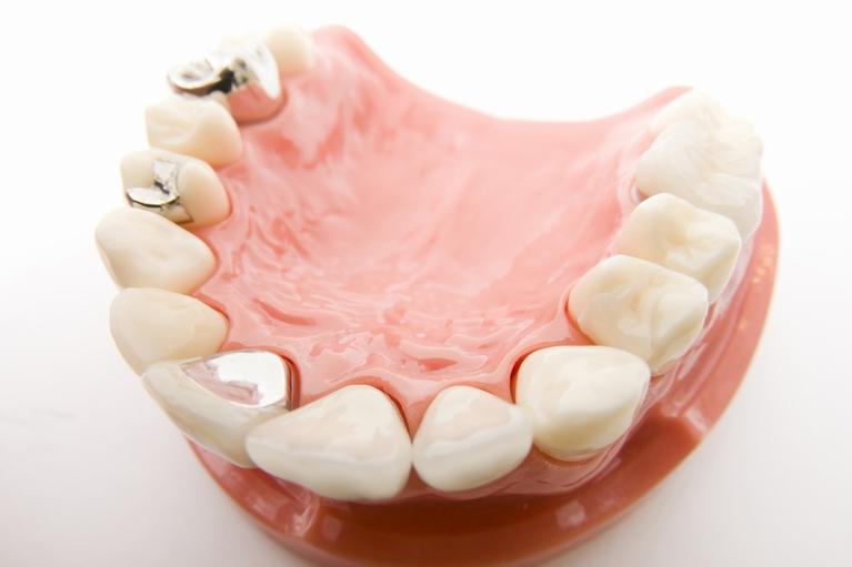 虫歯治療で歯を失ってしまう仕組み